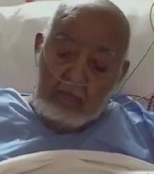 إجراء عملية جراحية لبتر ساق الفنان المراكشي عبد الجبّار الوزير